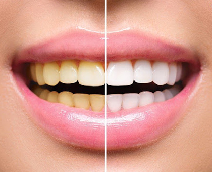 40 ლარად! ნებისმიერი კბილის ექსტრაქცია კლინიკაში პროფიდენტი-პლიუსი !