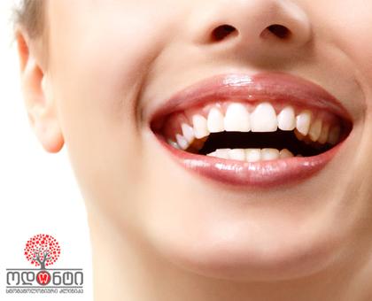 სასურველი კბილის ექსტრაქცია 15 ლარიდან სტომატოლოგიურ კლინიკაში «ოდონტი/Odonti»