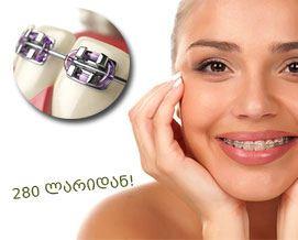 შეარჩიე სასურველი ბრეკეტები და ისარგბელე ფასდაკლებით Beqa Dent-ისგან